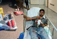 Bombaları Elinde Patlayan Teröristler Hastanede Yakalandı