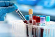 Korona Virüs Şüphelisi O Hastanın Sonuçları Belli Oldu